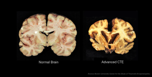 Brain tissue from healthy patients (left) and patients who suffered from CTE (right). Repetitive head injury causes shrinking and deformity of the brain.