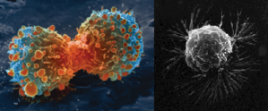 Will We Ever Cure Cancer?