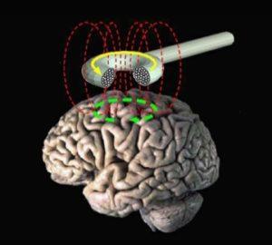 https://commons.wikimedia.org/wiki/File:Transcranial_magnetic_stimulation.jpg
