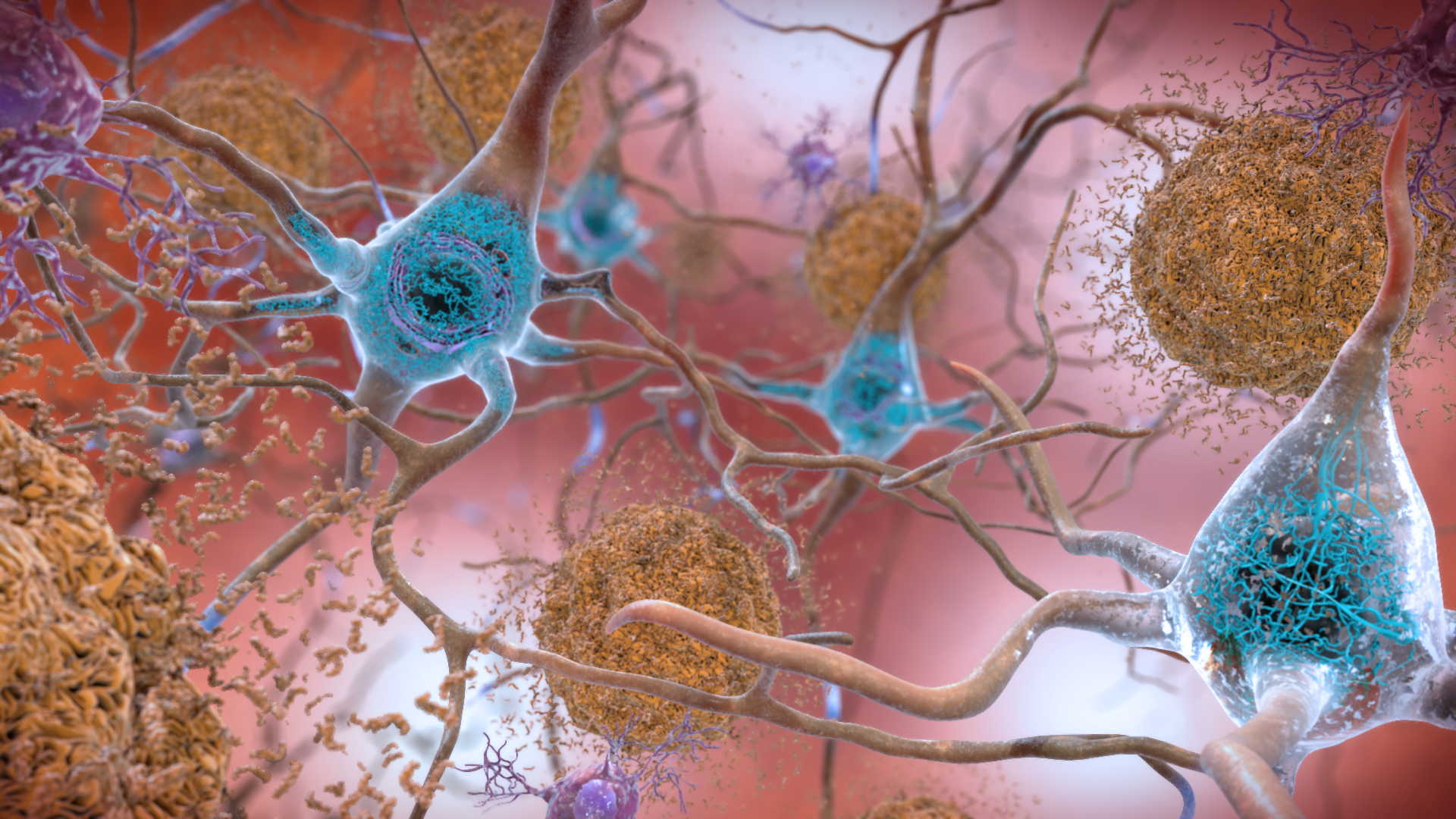 New Year, New Discoveries in Alzheimer's Research